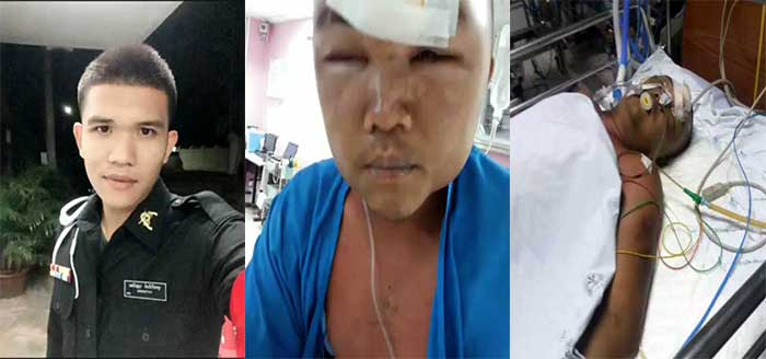 Before and after photos of Pvt Yutthakinun Benz Boonniam show him in training as a military policeman and hours before his death after a savage beating