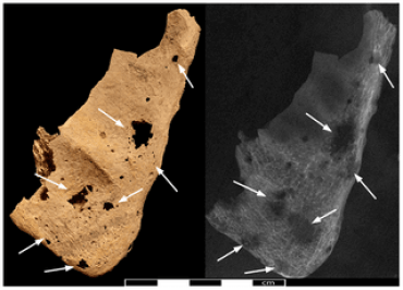 lesioni osteolitiche scapola evo antico