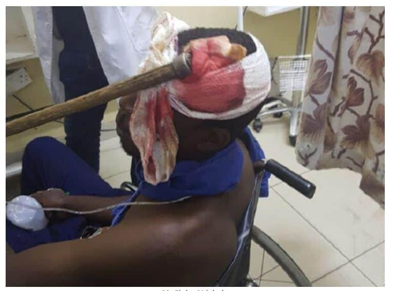 Gokwe madman(20) runs amok, hacks 5 people to death with axe
