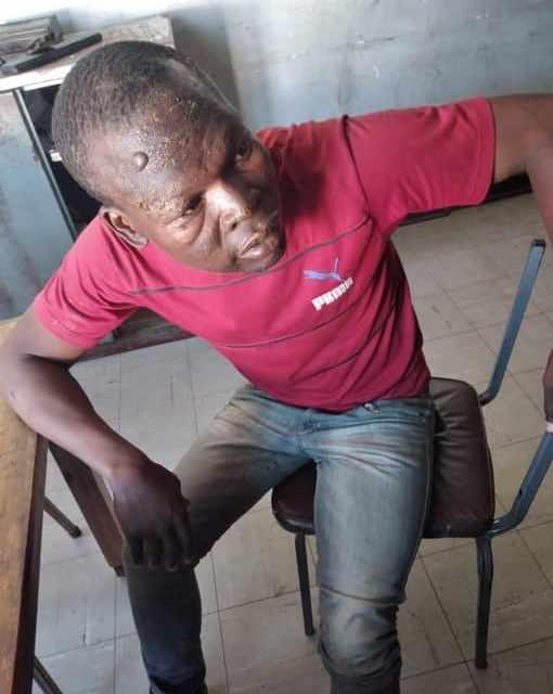 CIOs torture victim suffer 'acid' burns