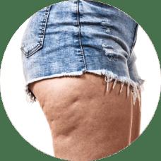 Sprawdż zabiegi na cellulit