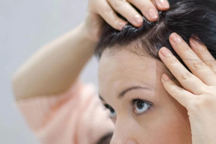 , طريقة تقشير فروة الرأس طبيعيًا لتنظيفها وتقوية البصيلات