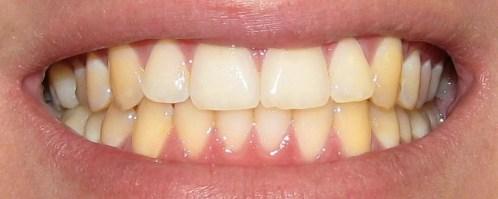 , وصفة الملح والليمون للتخلص من اصفرار الأسنان.. حل سحري وسريع