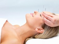 Acupuncture Prices. Services offered at Zylla Acupuncture